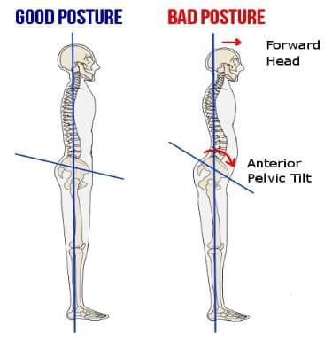 Good Posture Versus Bad Posture